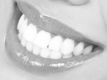 Attraktive, schöne Zähne